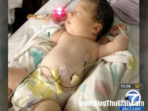 em be ma sinh ra khong co mau trong nguoi Em bé chào đời chỉ với 20% lượng máu trong người.
