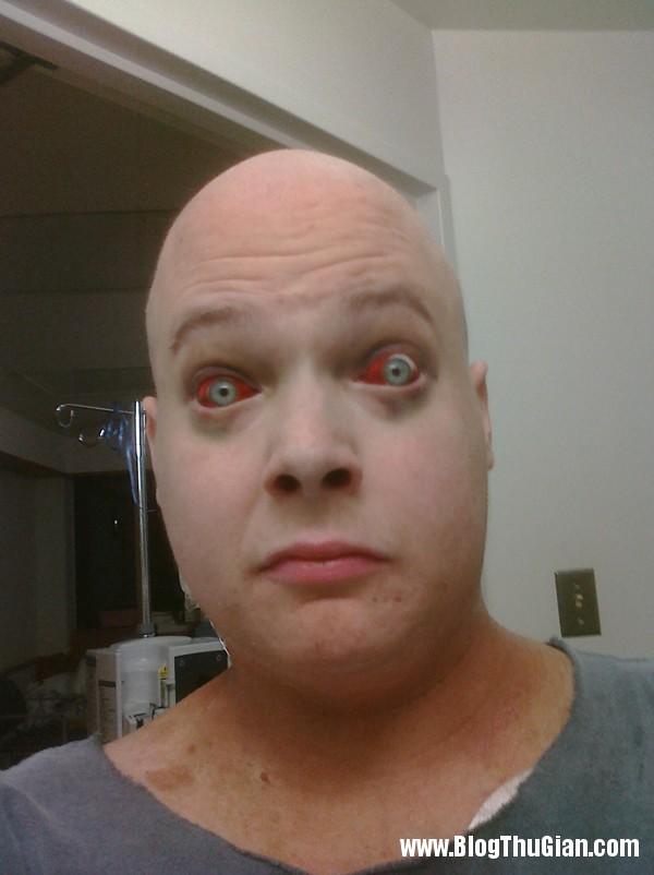 nguoi dan ong gay soc voi khuon mat giong thay ma Người đàn ông mang khuôn mặt zombie