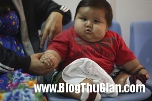 140320 1be 19790 300x200 Bé trai mới 8 tháng với cân nặng lên tới 19,5kg,