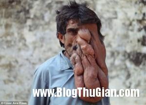 140321 1mat faf50 300x216 Chung sống với khối u nặng 4kg trên khuôn mặt