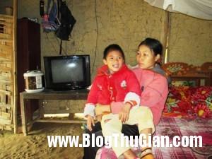 29mecon201 450 300x225 Chuyện về cô bé  ma cà rồng chỉ thích ăn thịt sống ở Việt Nam