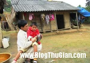 29uocmo201 450 300x210 Chuyện về cô bé  ma cà rồng chỉ thích ăn thịt sống ở Việt Nam