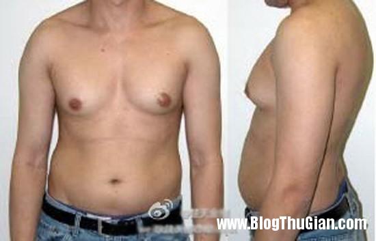 8147552d 2bd3 43fa 972d f145250721bf jpg0 Người đàn ông có bộ ngực phát triển như phụ nữ vì dùng nhiều sữa ông chúa