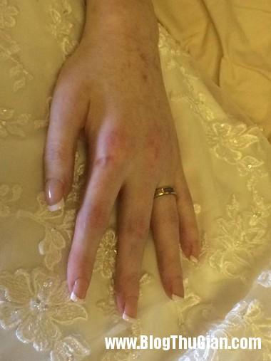 dam cuoi tren giuong benh002 2 4382 5177 1394188897 Cô gái suy dinh dưỡng hạnh phúc với đám cưới .