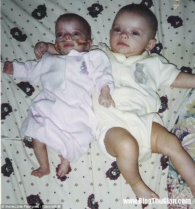 hai chi em sinh doi khac han nhau1 Cặp chị em sinh đôi khác hẳn nhau.