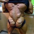 nguoi-dan-ong-bien-thanh-ga-tay-do-lam-dung-steroid