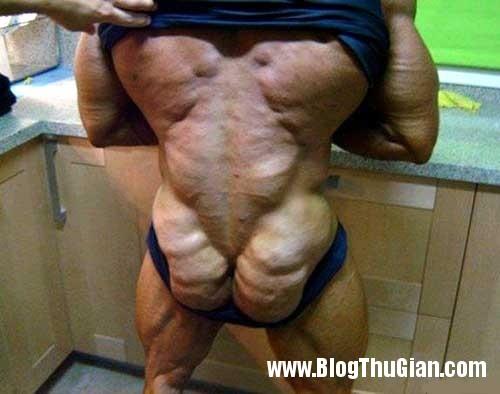 nguoi dan ong bien thanh ga tay do lam dung steroid Người đàn ông có thân hình như gà tây