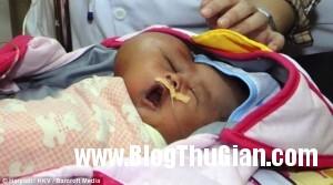 140302 1be 65c0e 300x167 Đáng thương cậu bé sinh ra mang quả đầu hình trái tim