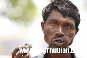 140403 2an 7fef9 300x200 Người đàn ông chỉ nghiện ăn gạch sỏi