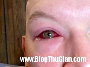 140407 1mat 174f8 300x224 Tròng mắt đỏ như máu do bị nhiễm trùng vi khuẩn