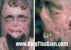 140409 1benh 3f752 300x213 Người đàn ông mang căn bệnh ma cà rồng