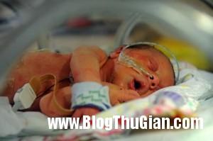 Baby Sienna 3396155 9415 1397205596 300x199 Bé mới chào đời chỉ có nửa quả tim