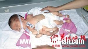 U542P886T1D109256F12DT20140414 8079 1209 1397468550 300x168 Em bé vừa chào đời với cơ thể có 8 chi