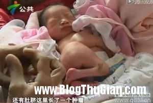 b1 90bbb 300x202 Bé sơ sinh chào đời với chân dính vào bụng