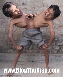 song sinh 1 247x300 Cuộc sống đầy nghị lực của hai cậu bé có thân hình dín nhau