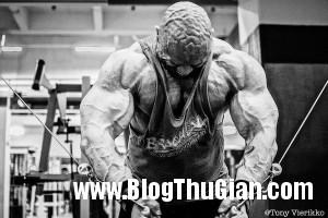 140506 1co 7922c 300x200  Da đầu nhăn nheo như bộ não vì lạm dụng steroid