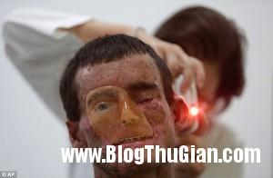 benhla1 20f22 300x196 Căn bệnh lạ khiến cơ thể không tiếp xúc được với ánh nắng mặt trời