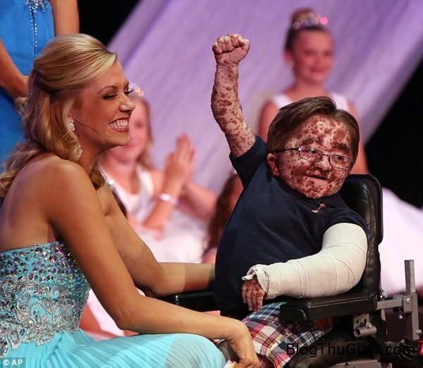 140615 1caube a0cab Cậu bé bị vỡ xương hơn 50 lần vẫn sống sót