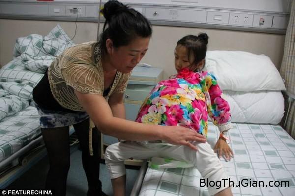 140621 1bung 791ed Đau lòng bé gái 12 tuổi mang khối u trên bụng to như quả dưa hấu