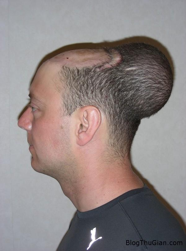 140625 1dau 3228d Người đàn ông mang khối u như cái đầu thứ 2