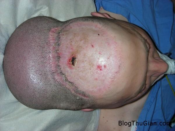 140625 2dau 3228d Người đàn ông mang khối u như cái đầu thứ 2