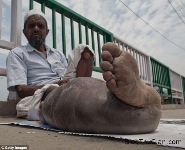 140626 2chan 40569 Đáng thương người đàn ông mang căn bệnh hội chứng người voi