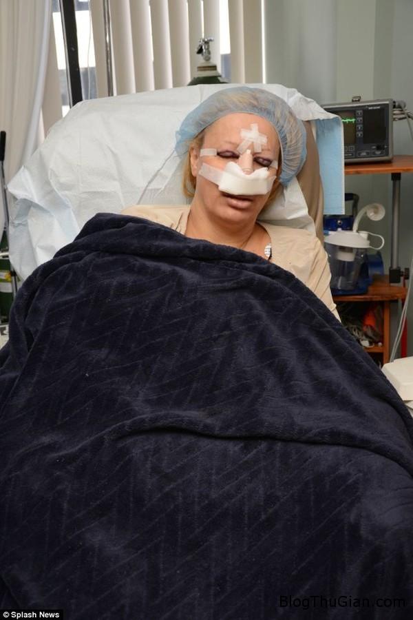 140702 5bupbe f0261 Bà mẹ 6 con nghiện phẫu thuật thẫm mỹ để trở thành búp bê sống