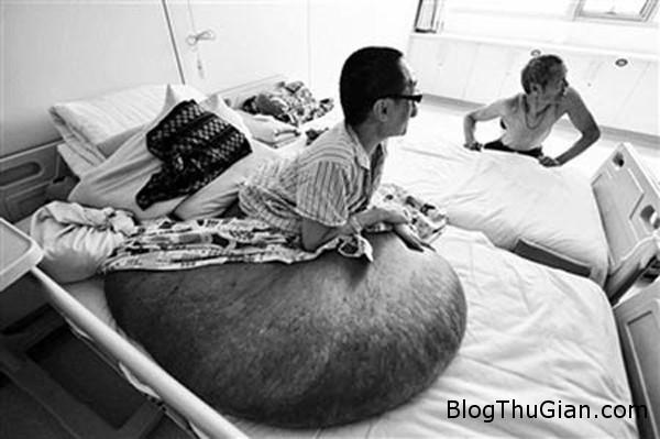 140703 1u 21421 Người đàn ông mang khối u nặng hơn 100kg