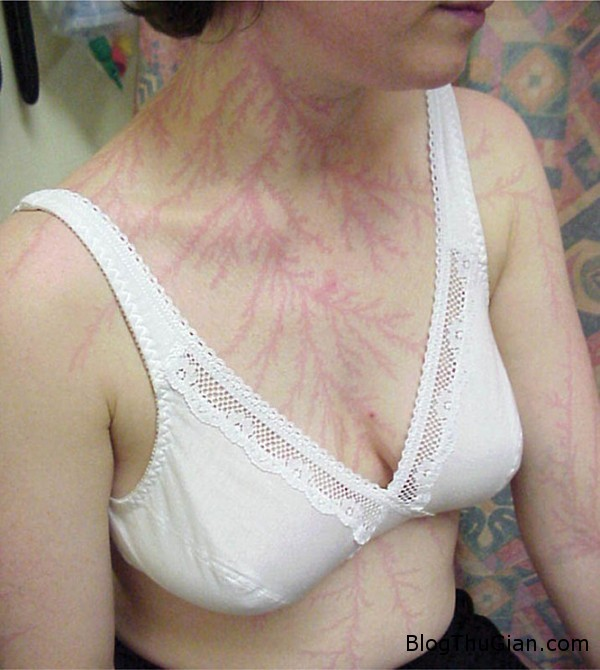 140705 2set 0756d Làn da xuất hiện hình xăm như nhánh cây sau khi bị sét đánh