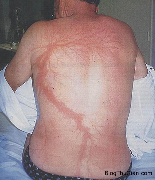 140705 3set 0756d Làn da xuất hiện hình xăm như nhánh cây sau khi bị sét đánh
