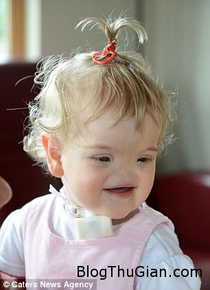 140714 1be 6f6f8 Khâm phục nghị lực sống của bé gái 17 tháng tuổi không có lỗ mũi