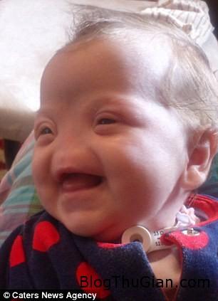 140714 2be 6f6f8 Khâm phục nghị lực sống của bé gái 17 tháng tuổi không có lỗ mũi