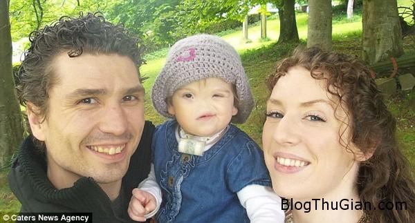 140714 3be 6f6f8 Khâm phục nghị lực sống của bé gái 17 tháng tuổi không có lỗ mũi