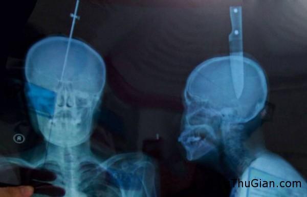 140715 1dao 294d1 Người phụ nữ 57 tuổi may mắn sống sót khi bị lưỡi dao găm vào đầu 11cm