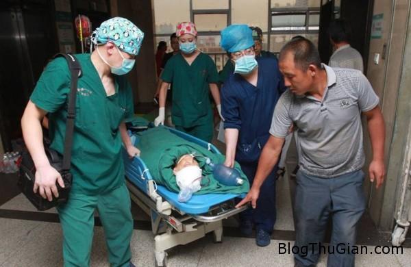 140715 2dao 294d1 Người phụ nữ 57 tuổi may mắn sống sót khi bị lưỡi dao găm vào đầu 11cm