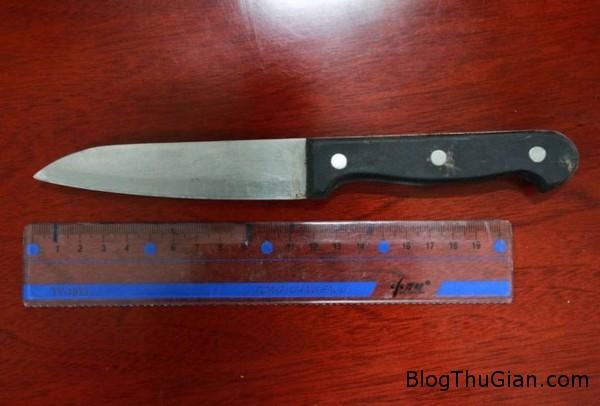 140715 3dao 294d1 Người phụ nữ 57 tuổi may mắn sống sót khi bị lưỡi dao găm vào đầu 11cm