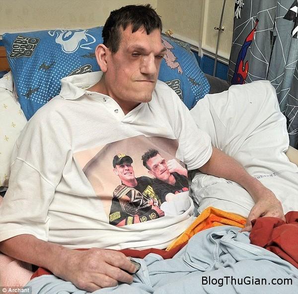140717 1khonglo 8117a Chàng trai 24 tuổi mang căn bệnh lạ khiến cơ thể anh không ngừng phát triển.