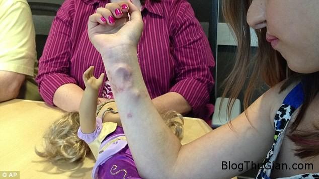 4b7473begaicotaimococanhtay Cô bé có lỗ tai mọc ở cánh tay