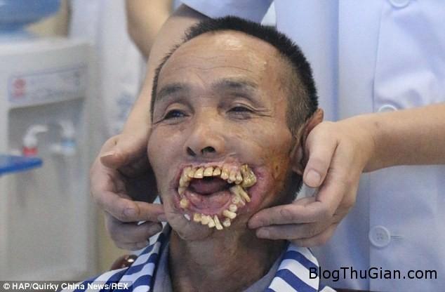 bien dang 1 Người đàn ông có hàm răng mọc chìa ra ngoài