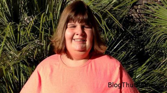 13662 hannah wilkinson1 Mới 14 tuổi đã nặng gần 160kg vì mắc chứng bệnh lạ