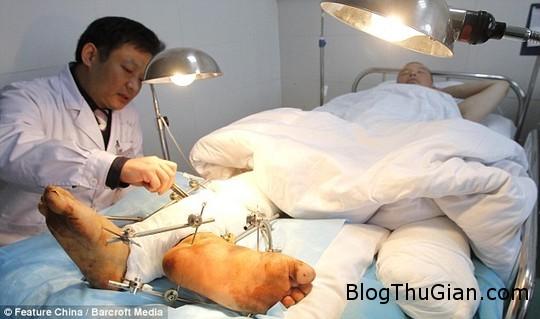 1407384696 1407374485 article 2715498 203d76d000000578 694 634x375 1407310160525 Phẫu thuật cắt ghép cho người có hai bàn chân phải