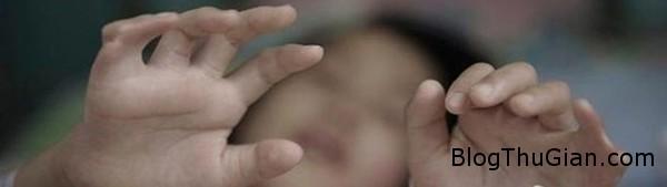 140813 3chan 99a59 Cuộc đời đáng thương của cô bé có 12 ngón tay và 15 ngón chân
