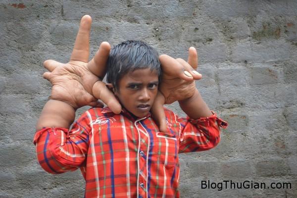 140820 3tay dd552 Cậu bé có đôi bàn tay cua khổng lồ