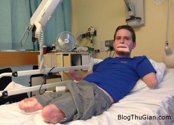140903 1vikhuan 90a6e Chàng trai từng bị vi khuẩn ăn thịt ăn mất nửa khuôn mặt đã được cấy ghép đôi môi mới