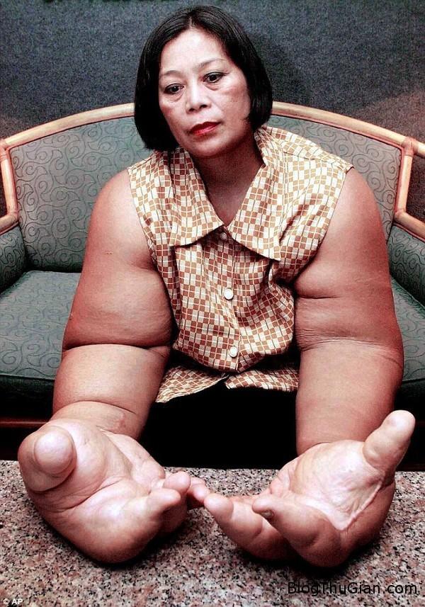 140903 3tay 5861c Người phụ nữ có đôi tay lớn nhất thế giới