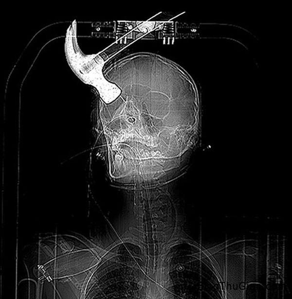 140909 2dau 6c45d Người đàn ông sống với hộp sọ bị méo một bên