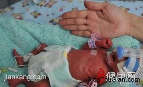 1410109317 4 Sức sống kỳ diệu của bé gái chào đời chưa đầy 1kg