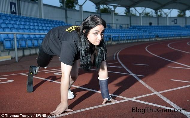 zing cat bo chan  Cô gái trẻ muốn cắt bỏ chân để được chạy nhanh hơn