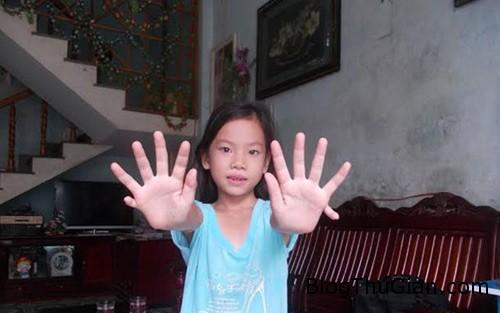 1413759763 3 Bé gái có đến 24 ngón tay và chân ở Quảng Nam