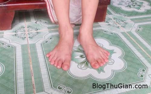 1413759772 4 Bé gái có đến 24 ngón tay và chân ở Quảng Nam